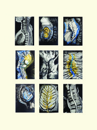Wounded Spine by Rosalina Dey, Conceptual Painting, Mixed Media on Paper, Beige color